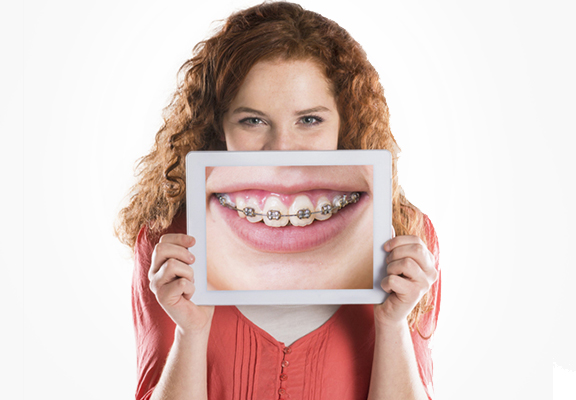 ortodoncia clinica dental carlos mur